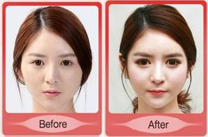 ศัลยกรรมเกาหลี หมอเขาเก่งจริง ๆ