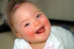 โรคทางพันธุกรรม คืออะไรมาดูกันค่ะ
