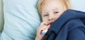 โรคงูสวัด สาระที่น่ารู้